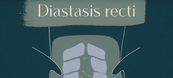 diastasis-recti-Interview-OB-Jaqueline-Worth